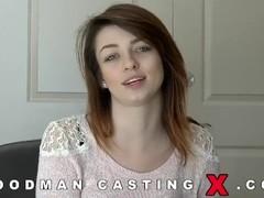 Casting Thumb